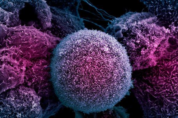 cancer-1024_170075k